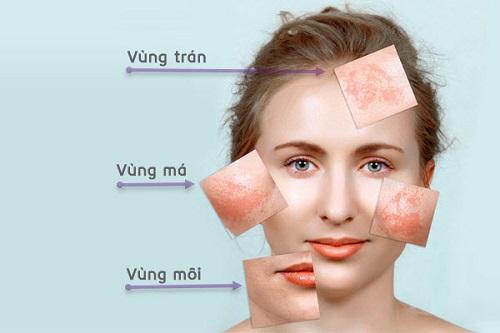 Cách chữa nám da mặt hiệu quả nhất