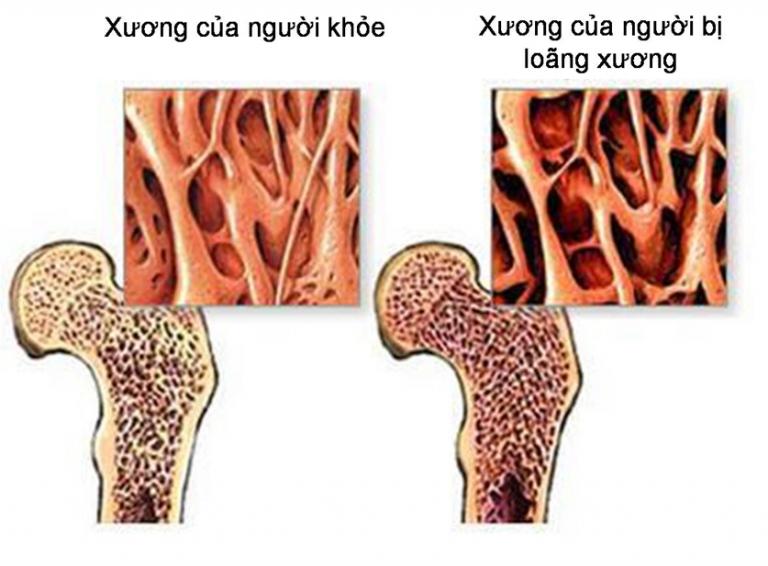 Muốn khỏe mạnh đừng bỏ qua phương pháp điều trị bệnh loãng xương này