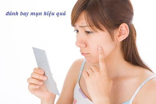 Top 8 Sản Phẩm Trị Mụn Của Nhật Tốt Nhất Được Các Chuyên Gia Khuyên Dùng