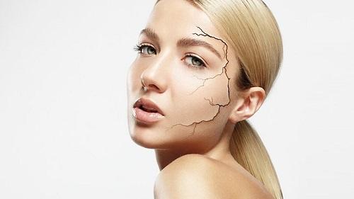 Các vấn đề mà da thường gặp phải là gì
