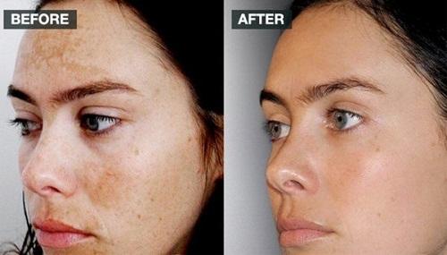 hiệu quả sau vài tuần sử dụng image iluma intense bleaching serum