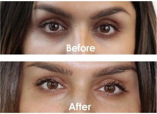 trước và sau khi dùng kem mắt iluma intense brightening eye creme