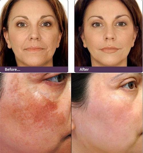trước và sau khi sử dụng image md restoring retinol creme