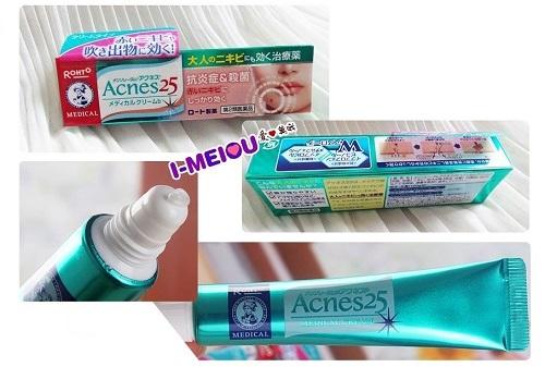 kem trị mụn rohto acnes 25 của nhật bản