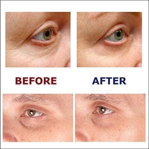 hiệu quả sau khi sử dụng image skincare the max stem cell eye creme