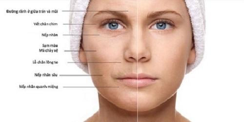 collagen giúp chống lão hóa