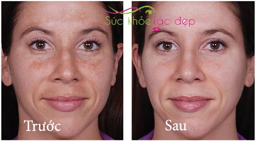 trước và sau khi dùng obagi c rx c-therapy night cream
