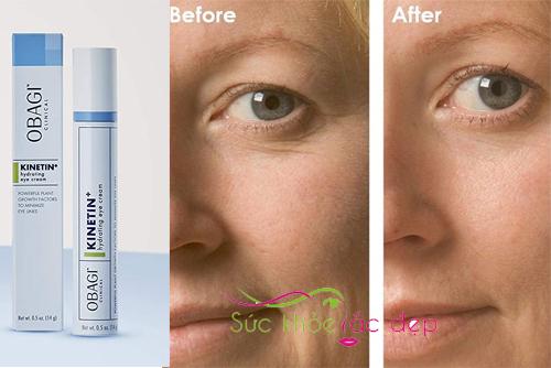 obagi clinical kinetin+ hydrating eye cream - bí quyết cho vùng da quanh mắt tươi trẻ
