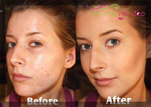hiệu quả sau khi sử dụng obagi clinical retinol 05 retexturizing cream