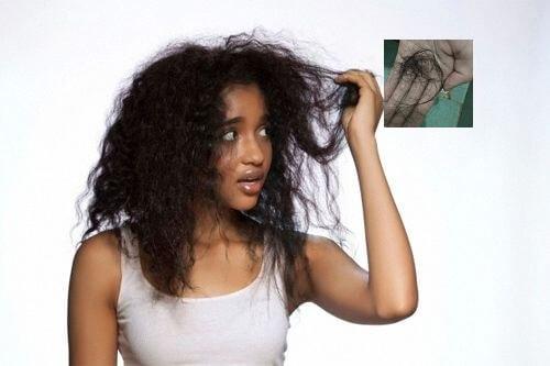 top 5 phương pháp giảm rụng tóc hiệu quả