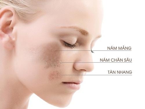 Top 6 loại kem trị nám da mặt hiệu quả nhất nên dùng