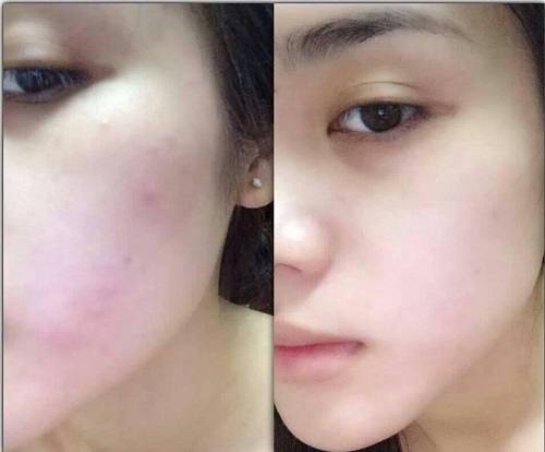Hết mụn nhờ áp dụng mặt nạ trị mụn tại nhà