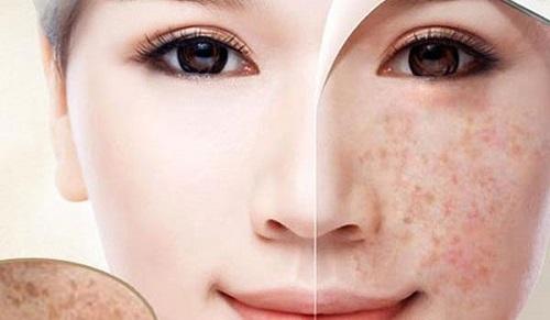 Thực hiện trị nám tàn nhang đúng cách bạn sẽ sớm sở hữu làn da đẹp không tỳ vết