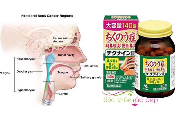 Viên uống trị Viêm Xoang chikunain Nhật Bản trong việc trị đau nhức