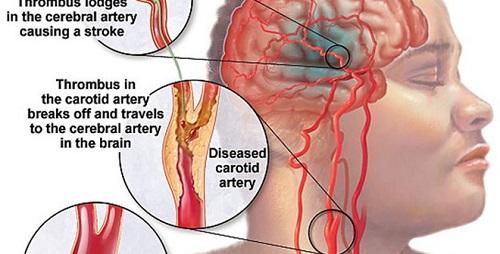 ìm hiểu về đột quỵ và các nguyên nhân hậu quả dẫn đến đột quỵ.